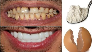 In just 1 minute, transform your yellow teeth into white and shiny teeth like pearls