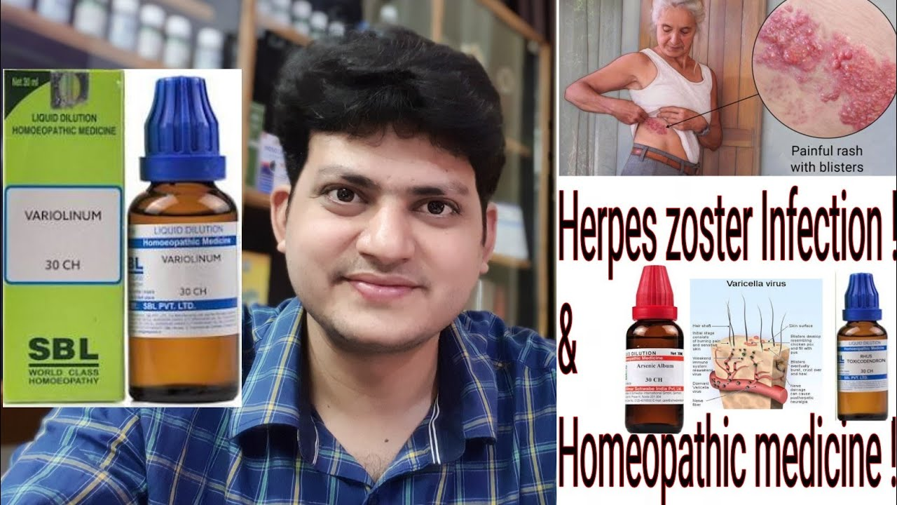 Herpes Zoster ! Homeopathic Medicine for Herpes Zoster ? Explain !