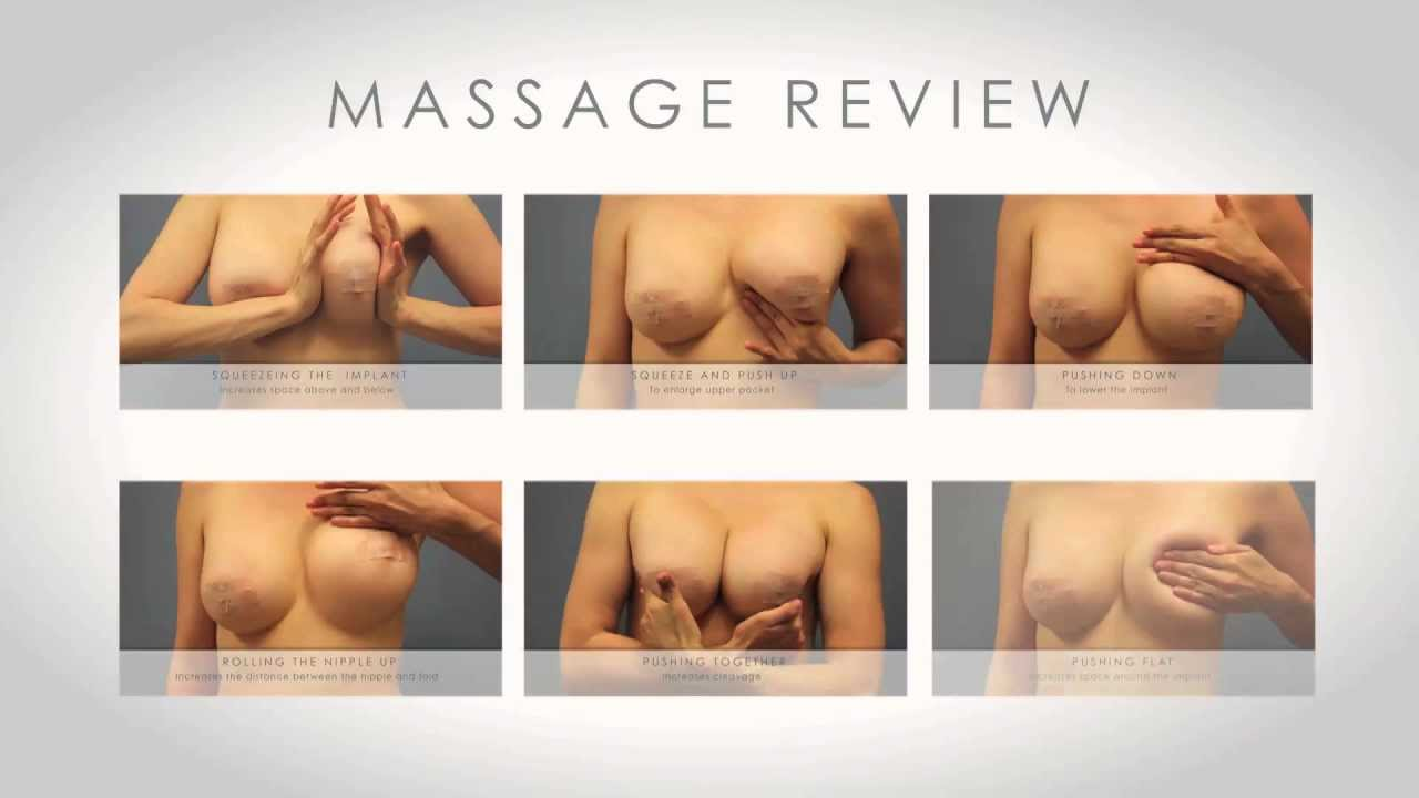 How To Massage Breast After Breast Augmentation 45