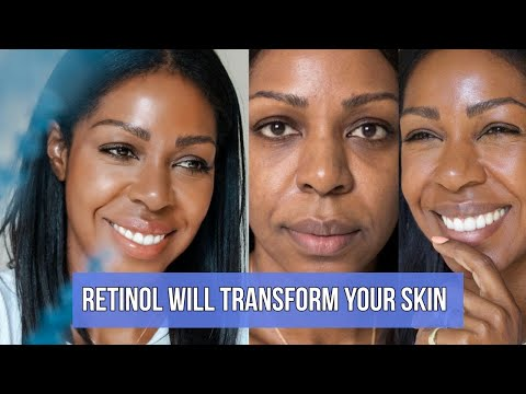 You Need To Try Olay Retinol24 Night Moisturizer Now (Before & After Shots) - SKIN TRANSFORMATION