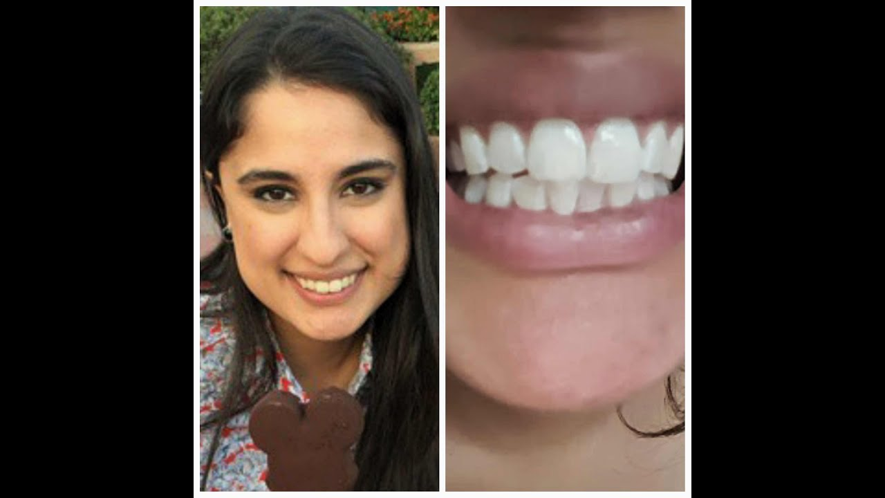 Teeth Whitening At Home In 3 Minutes