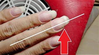 Как исправить Кривой ноготь Коррекция Криво растущего ногтя