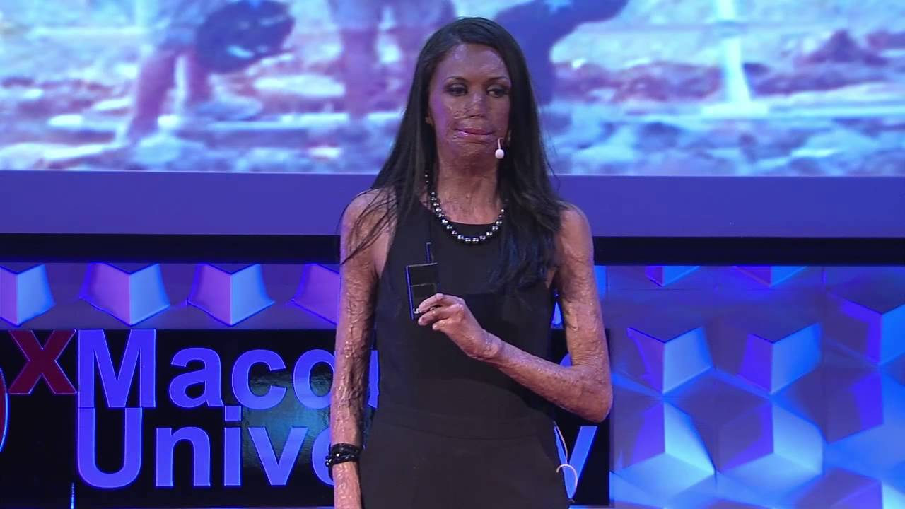 Unmask Your Potential Turia Pitt