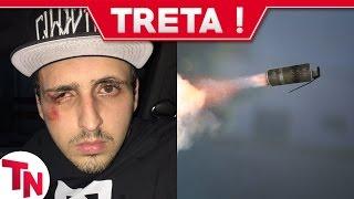 Bomba da polícia explode na cara de Youtuber! Youtube se pronuncia sobre bug