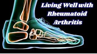 Living well with rheumatoid arthritis   health & fitness good