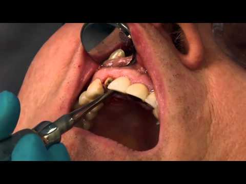 Implant Case #7 - Dr. Tarun Agarwal, Part 5: Extraction