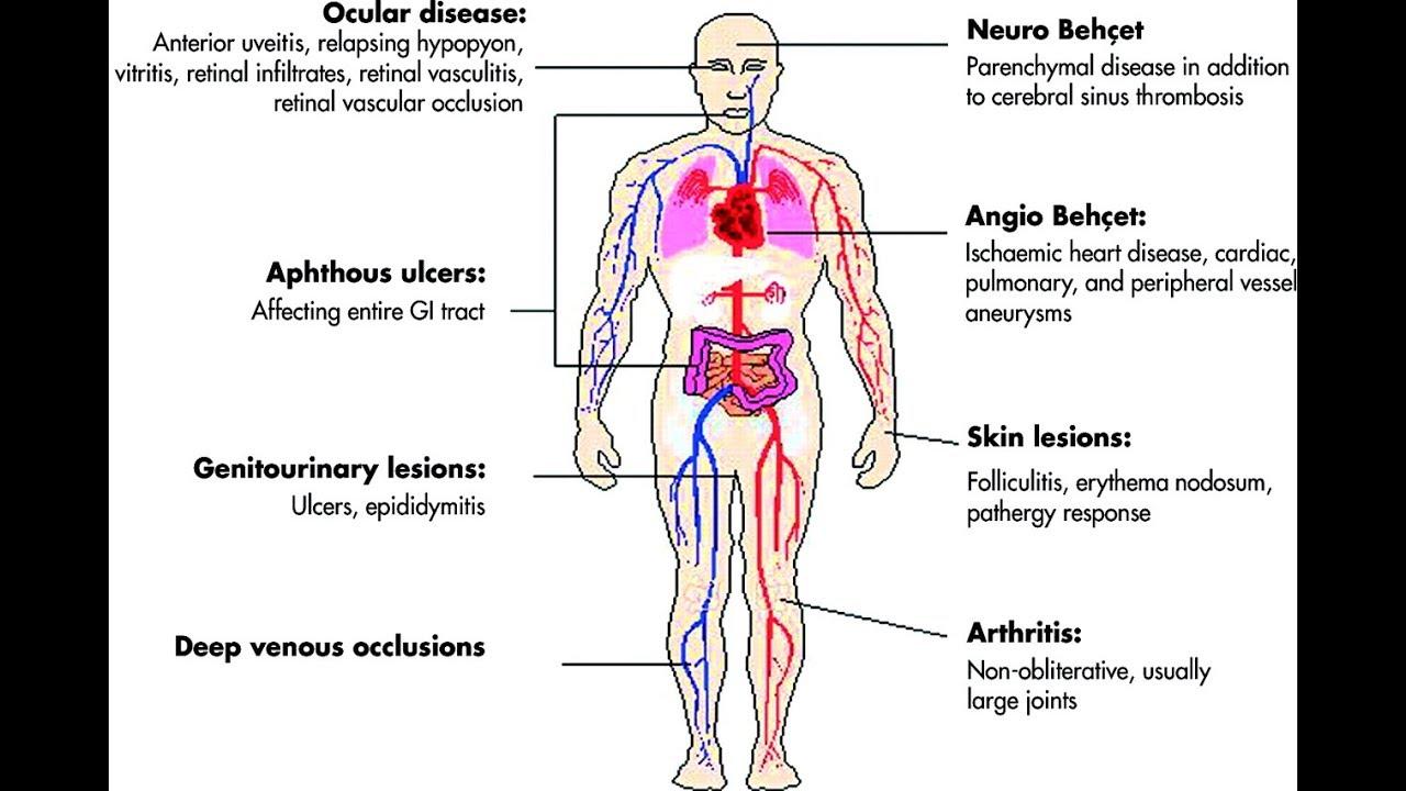enfermedades del cuerpo que es