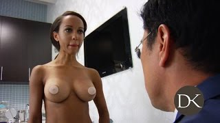 Repeat youtube video Breast Augmentation: Trans-umbilical Approach