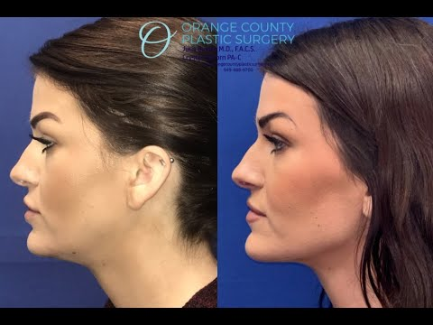 Neck Liposuction with before and after! Ditch the double chin!