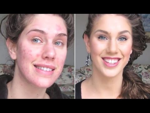 How to get rid of deep acne scars fast at home youtube how to get rid of deep acne scars fast at home ccuart Gallery