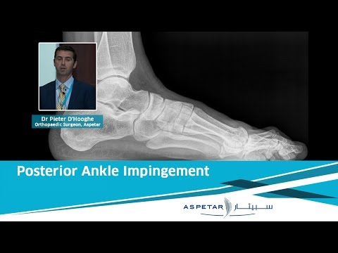 Posterior Ankle Impingement | Dr. Pieter D'Hooghe (Aspetar)