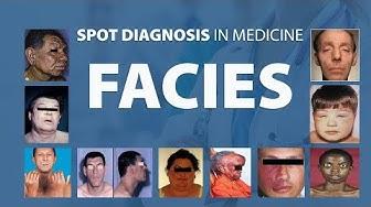Abnormal Facies - Spot Diagnoses in Medicine