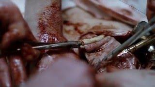 Video The Knick 1X01 - Bronchitis. download MP3, 3GP, MP4, WEBM, AVI, FLV Agustus 2017