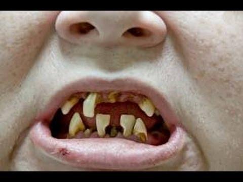 Zähneputzen aber richtig und die 5 größten Irrtümer
