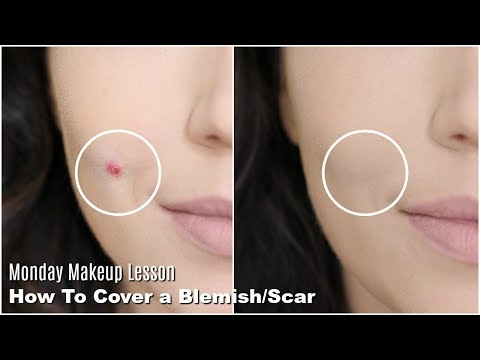 How To Cover Acne & Scars & Blemishes | Monday Makeup Lesson