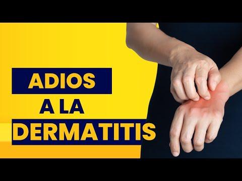 Si hay un picor de la piel a la psoriasis