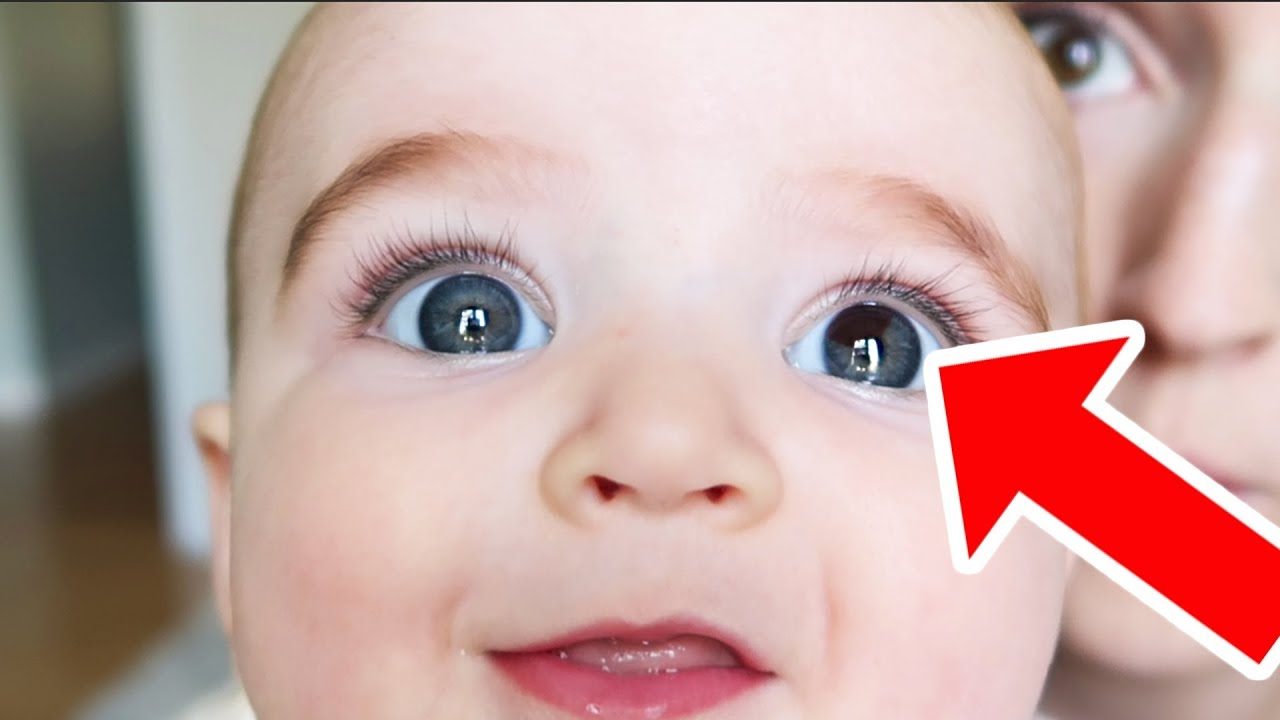 Baby Born With Rare Eye Birthmark