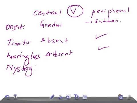 Quick Internal Med: Central Vertigo VS Peripheral Vertigo