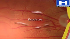 hqdefault - Diabetic Optic Neuropathy Treatment