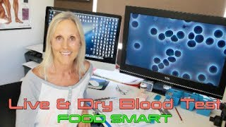 Live & Dry Blood Test - What to expect - My Life Blood - Maria Waldock