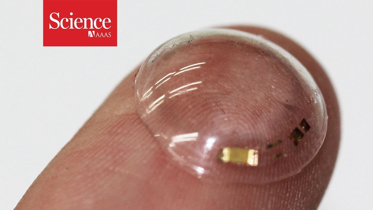 These smart contacts can monitor the glucose in tears | Science | AAAS