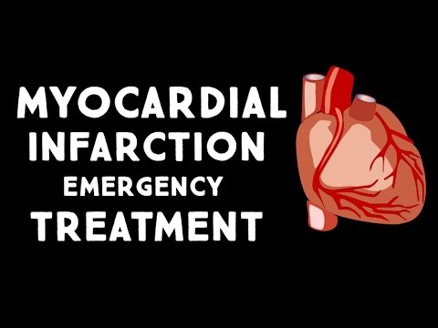 Myocardial Infarction (MI,Heart Attack) Treatment in Emergency | Step wise  STEMI Management USMLE