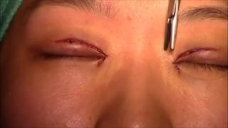 Operasi Lipatan Mata atau double eyelid (Blepharoplasty with Epicanthoplasty)