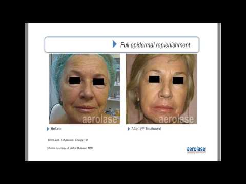 Advancements in Skin Resurfacing with LightPod Era by Dermatologist Bradley Bloom, MD