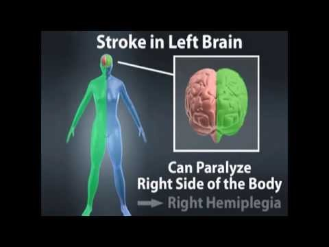 Stroke: Pathology, Pathophysiology, Clinical Manifestations,