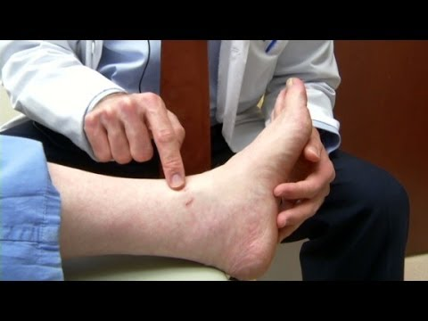 Diabetics are prone to skin conditions