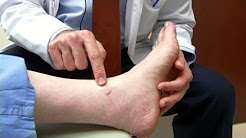 hqdefault - Type 2 Diabetes Leg Edema