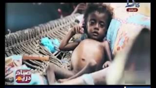 صباح دريم | حصاد الدول العربية في 2016.. حروب ومجاعات وإرهاب وتفجيرات