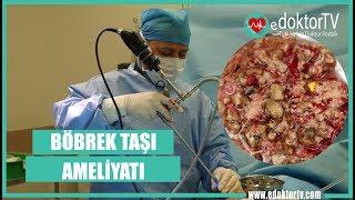 BÖBREK TAŞI AMELİYATI (Kapalı Böbrek Taşı Ameliyatı)