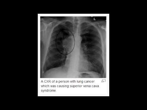Superior Vena Cava Syndrome