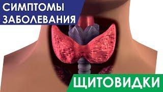 Щитовидная железа. Первые симптомы заболевания щитовидной железы у Женщин, Мужчин и Детей