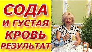Сода - густая кровь !Метод И. П. Неумывакин . мой результат.