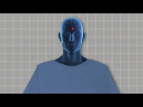 Deep Brain Stimulation: How It Works