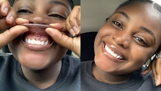 I Pierced My Own Smiley....Again! | At Home Smiley Piercing | Upper Lip Frenulum Piercing