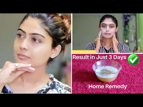 OMG 😮 This Facial Remove Your Dark Spots, Brown Spots, Pigmentation & Pimples in just 3 Days