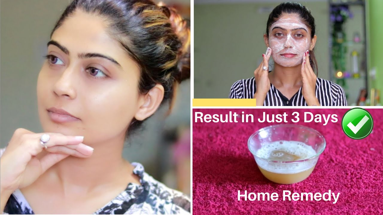 Image result for OMG 😮 This Facial Remove Your Dark Spots, Brown Spots, Pigmentation & Pimples in just 3 Days