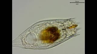 Rotifer Notholca acuminata