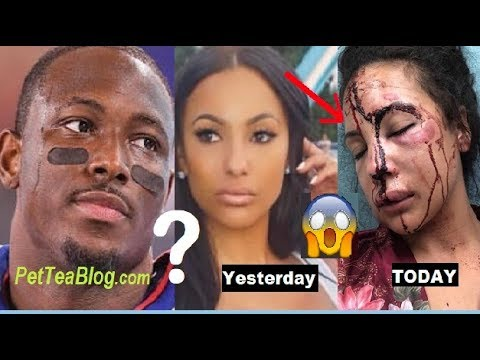 lesean-mccoy-denies-beating-up-girlfriend-after-pictures-story-leak