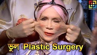 প্লাস্টিক সার্জারি করিয়ে ধরা খেয়েছেন যারা   Top 5 Story Of Plastic Surgery   Taza News