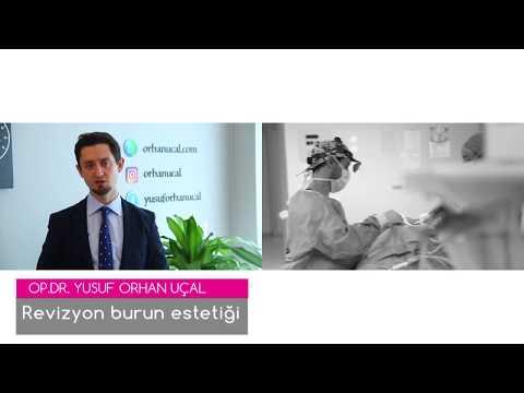 Revizyon burun estetiği- Op. Dr. Yusuf Orhan Uçal