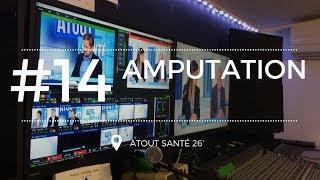 Repeat youtube video Amputation, la vie continue  - Atout Santé
