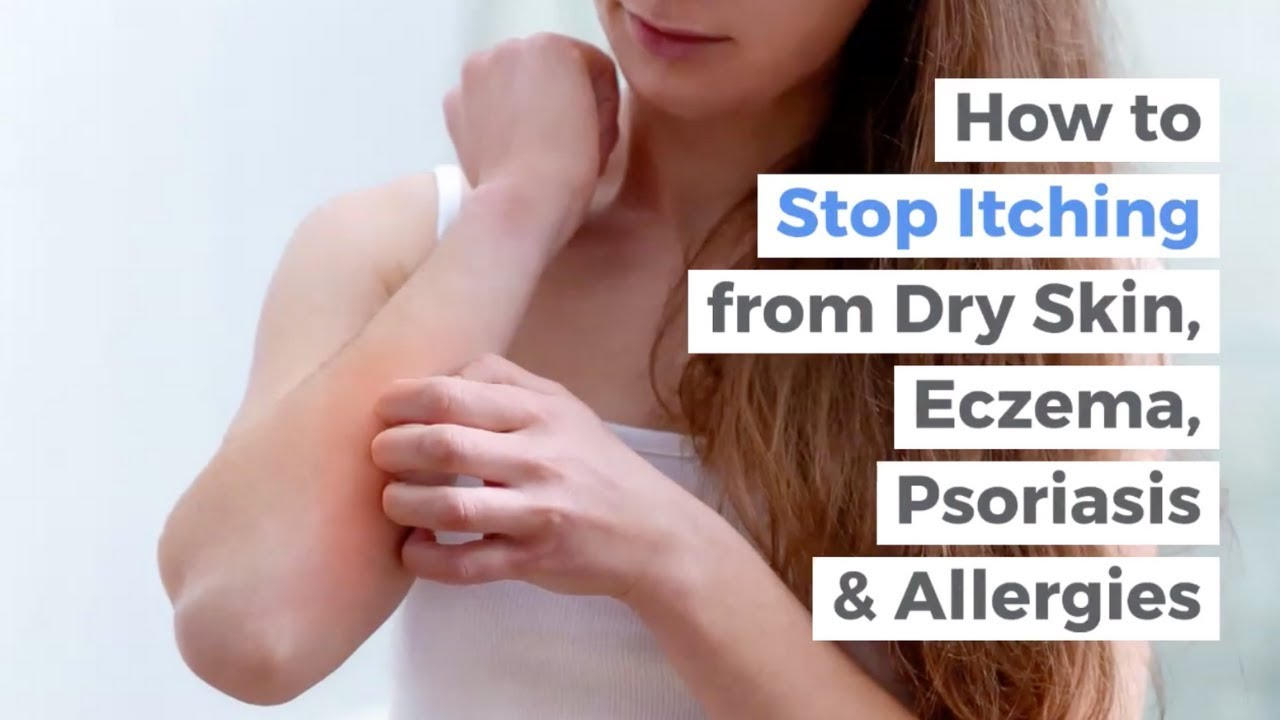 How to Stop Itching due to Dry Skin, Eczema, Psoriasis