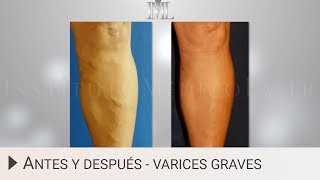 Antes y después de eliminar varices graves