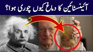 What Happened to Einstein's Brain | Science and Technology