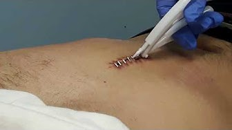 DIY How to remove Surgical staples metal stitches from chest