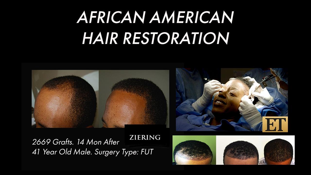 African American Hair Transplant Surgery & Hair Restoration